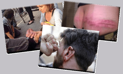 injured defenders of Can Vies